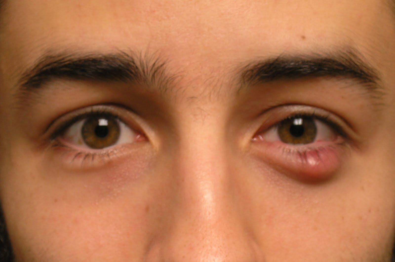 Покраснение глаз. Причины и как избежать